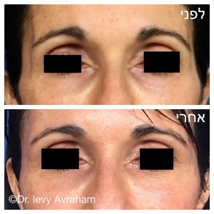 """ניתוח עפעפיים לפני ואחרי ד""""ר לוי אברהם"""