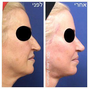 תמונה לפני ואחרי ניתוח אף לאישה