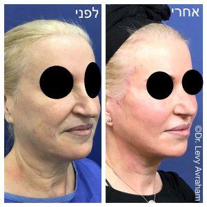 תמונה לפני ואחרי ניתוח אף לאישה לוי אברהם