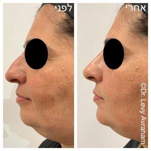 ניתוח אף תמונה לפני ואחרי נשים