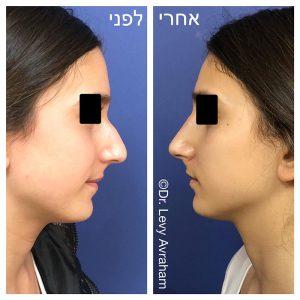 ניתוח אף תמונה לפני ואחרי