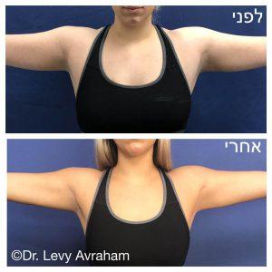 מתיחת זרועות ללא צלקות עם שאיבת שומן בלייזר