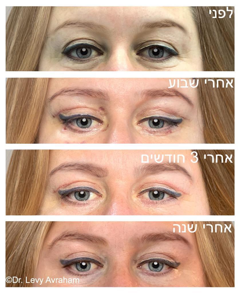 ניתוח לכסון עיניים לפני אחרי